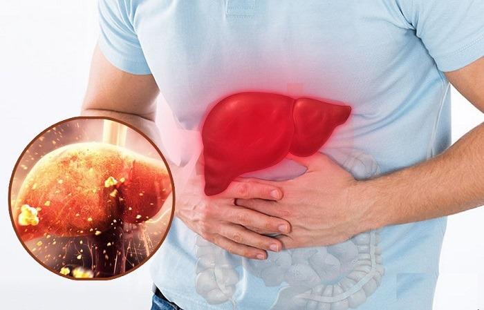 Men gan cao là bệnh lý khá phổ biến hiện nay và càng ngày càng có xu hướng tăng nhanh