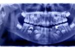 Chụp Xquang răng là gì và có cần thiết không?