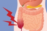 Viêm ruột thừa là gì? Diễn biến của bệnh viêm ruột thừa như thế nào?