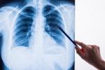 Chụp Xquang tim phổi