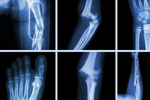 Vai trò của chụp Xquang đối với chẩn đoán trấn thương xương