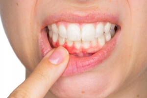 Bạn đã thật sự quan tâm đến sức khỏe răng miệng!